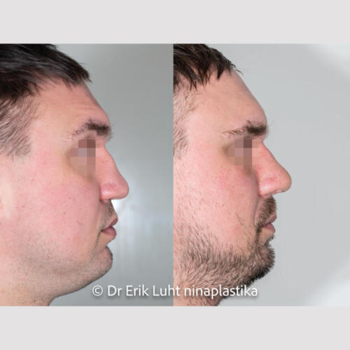 Sadulnina deformatsioon, hingamistakistus. Taastatud roidekõhre abil. 10 päeva peale lõikust.
