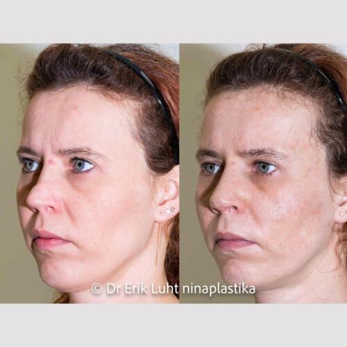 Ninatipu deformatsioon. 10 päeva peale lõikustNasal tip deformity. 10 days after surgeryДеформация кончика носа. 10 дней после операции.