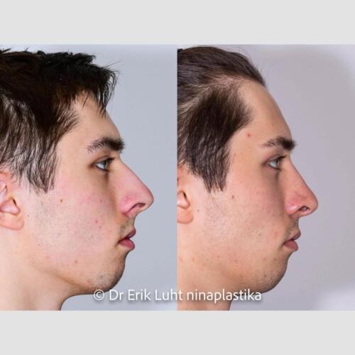 Küüru vähendamine, ninatipu deroteerimine
